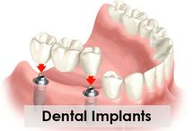 Dental Implants Tysons Corner VA / Dental implants can be used to support a number of dental prostheses, including crowns, implant-supported bridges or dentures. They can also be used as anchorage for orthodontic tooth movement.