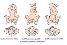 maternity nursing2