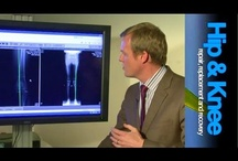 Osteotomy around the knee / Cutting and realigning bone to improved symptoms and function.