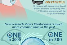 Astigmatism and keriticonus