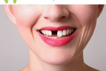 Dental Implants in three days / Dental Implants an  excellent way to replace missing teeth.We can help you SMILE again . Call us +918588097530 and schedule your appointment.