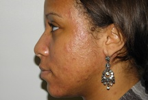 ACNE | Treatment Results