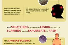 Info about Eczema