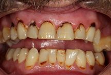 Another Direct Bonding Case Dentaltown Cosmetic Dentistry
