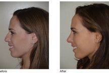 Cosmetic Nose Procedures: Before & After  / Cosmetic surgery can be an exciting and life changing experience.  This is particularly true when it comes to rhinoplasty because, as the most defining of the facial features, even small changes to the nose can dramatically improve one's appearance.