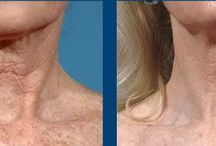 Fraxel / Fraxel is a laser treatment at our cosmetic clinic. Great Acne treatment. also treats sun damage and pigmentation.