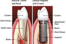 Implant Dentistry Saint Louis, MO #TheDentalAnesthesiaCenter #SleepDentistrySTL #SleepDentistSTL