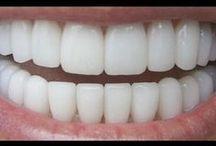 dentes brancos os