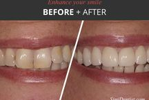 Enhance your smile at Victor K. Muradian, DDS - Simi Valley Dentist / An attractive, healthy smile projects youth, confidence and beauty. Using advanced techniques in cosmetic dentistry, our Simi Valley dentist can transform your smile in a relaxed environment.
