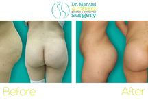 Before and after / Body procedures by Dr. Manuel Gutierrez; brazilian butt lift, tummy tuck. Plastic Surgery in Tijuana Mexico.