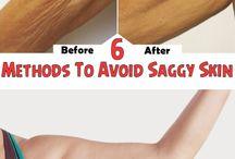 Saggy skin