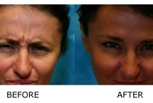 Finelift: Before and After Photos / FineLift is Refine Institute's modern, less painful, non-surgical approach to facelift. It uses SmartLipo and SmartXide DOT Laser therapy combined to give the patient a youthful, more beautiful appearance. Additional treatments also include fillers and a series of medical facials, used in combination with a prescription skin care line and anti-oxidants that will help patients maintain results for years to come.