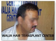 Hair Transplant India / It is the best hair transplant center in India.