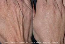 Hands Rejuvenation with Dermal Fillers / Back of hands can give away your age. Dermal fillers can be used to add volume to the skin of hands for reduction in the appearance of veins and tendons for instantly younger looking hands