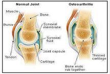 Sakit Lutut / Info berkenaan sakit lutut.