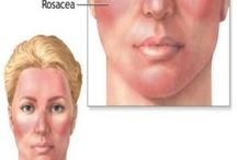 Skin care / psoriasis, rosacea, and dry skin / by Melissa M