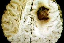 Brain Tumor info