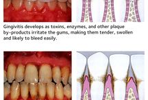 Periodontal Disease and Health