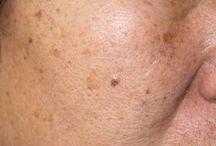 Skin Disorders and Sensitivities