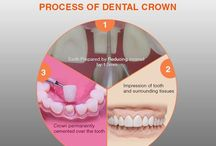 Ceramic crowns in Hyderabad / Get dental crowns in ceramic, zirconia, emax, gold, metal and composite in  Hyderabad. Find  Prices, Best Prosthodontists, Cosmetic Specialists, General Dentists and Dental Clinics. Book Appointments.