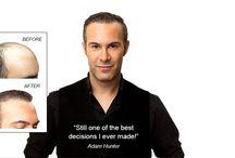 Hair Transplants for Men / Hair transplant surgery results