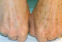 bruinen vlekken op je handen