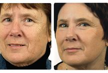 Sciton® Laser Resurfacing