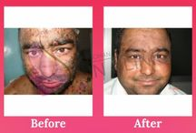 Skin Problems Treatment / From the Dr. Mohan Skin & Hair Centre you all can easily get the best results for your skin disorders with successful results.