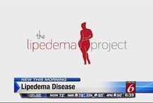Facts about Lipedema