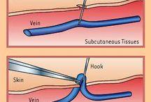 κιρσοι / Οι κιρσοι θεωρούνται δεύτερο στάδιο φλεβικής ανεπάρκειας των κάτω άκρων και στη συνηθισμένη τους μορφή, δεν είναι επικίνδυνη πάθηση.  Αν όμως δεν θεραπευθούν έγκαιρα, μπορεί με τον καιρό να προκαλέσουν χρόνιο οίδημα στα πόδια, δερματικές αλλοιώσεις κοντά στους ασταγάλους (υπέρχρωση, λιποδερματοσκλήρυνση, λευκή ατροφία) και θρόμβωση των επιφανειακών κιρσών (επιπολής θρομβοφλεβίτιδα).