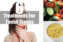 How To Get Rid Of Sore Throat From Tonsil Stones