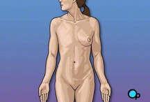 PreOp Mastectomy Radical Surgery Patient Education / Your doctor has recommended that you have radical mastectomy. But what does that actually mean?