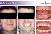 Before&After / Amazing Smile Makeovers realised by our specialist