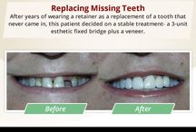 Before/After Dental Cases - Simi Valley Dentist / Our Simi Valley dentist has dedicated to designing and creating the perfect smile for you. Please browse our smile gallery to see actual patients who have benefited from Victor K. Muradian, DDS's personal care. http://www.simidentist.com/before-after-smile-makeover.aspx