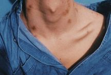 bruises&scars