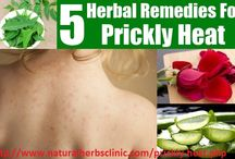 Prickly Heat Natural Treatment