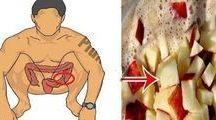 limpador de intestino