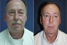 Lower Lid SOOF- eye surgery