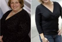 Weight Loss - General Interest / Weight Loss Surgery Bariatric Surgery Related