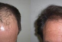 Before and After / Antes y despues / Final Results after months for a succes hair transplant Resultados finales meses despues de un exitoso trasplante de cabello