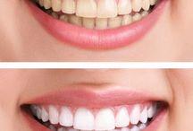 zuby beleni
