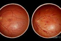 Hypertension Retina / Hypertension Retina