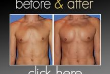 cosmetic surgery for men / by TheresaTerri