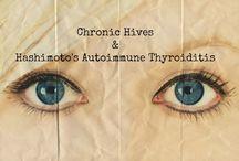 hashimoto & hives / by Tanya Swanson Easley