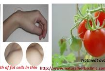 Lipoma Herbal Treatment