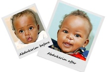 Before & After Pics / by Operation Smile UK Smile UK