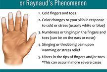 The Raynaud's Fight...