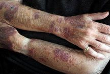 Bruise Prevention Blood Thinners