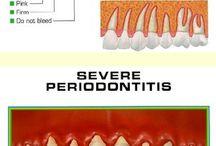 UDental Gum Disease