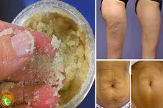 The Most Effective Homemade Scrub Against Cellulite and Stretch Marks! #AllYouNeedToKnowAboutCellulite